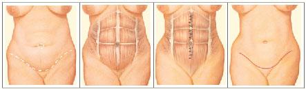 Abdominoplastia Cirurgia Plastica Procedimento Center Cintas