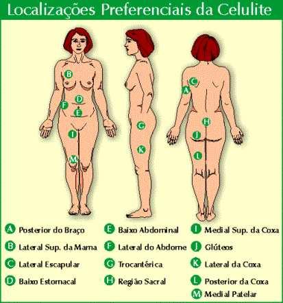 Celulite Corpo