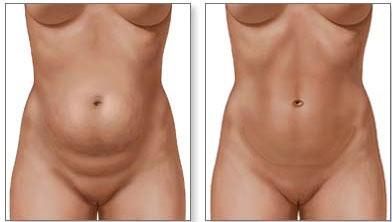 Antes-e-depois-abdominoplastia-Endoscópica