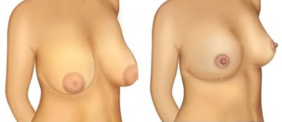 antes e depois mastopexia